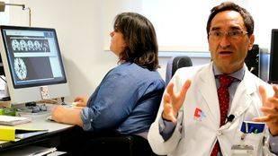 Identificados nuevos genes asociados al volumen del cerebro humano