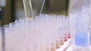 Nueo método analítico que el diagnóstico y seguimiento de enfermedades oncológicas