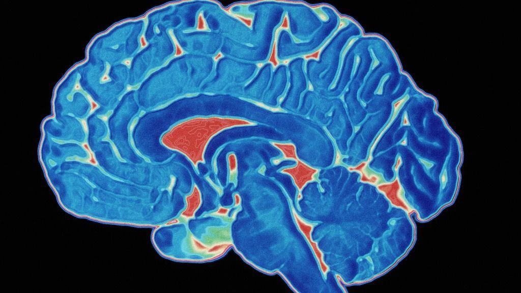 La estructura cerebral determina la falta de sensibilidad musical